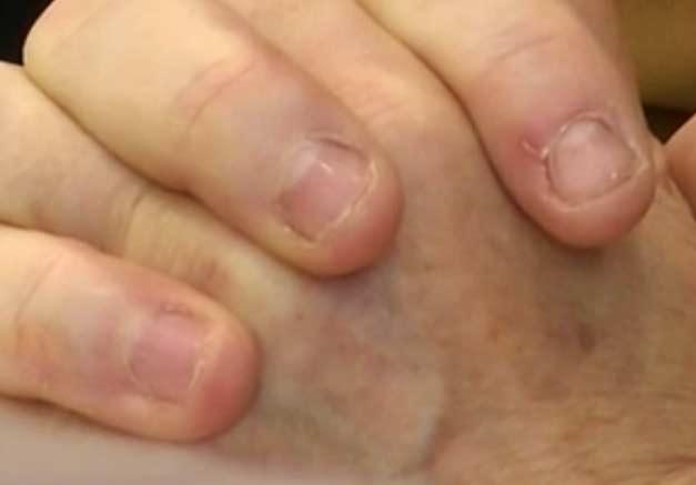 merkels-fingernägel_closeup